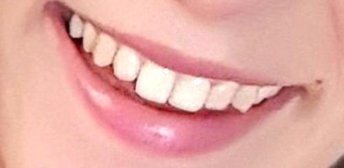 Usta uśmiechnięte przed zabiegiem powiększania ust kwasem hialutonowym