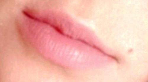Usta zamknięte przed zabiegiem powiększania ust kwasem hialutonowym