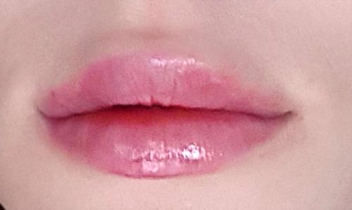 Usta po drugiej iniekcji kwasu hialuronowego - łącznie 2 ml