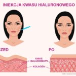 Iniekcja kwasu hialuronowego - efekty przed i po, na grafice widać skórę z niskim poziomem kwasu hialuronowego i kolagenu z lewej strony przed iniekcją, a po prawej widać skórę iniekcji z optymalną ilością kwasu hialuronowego i kolagenu. Efektem jest gładka, jędrna, pozbawiona zmarszczek twarz skóry