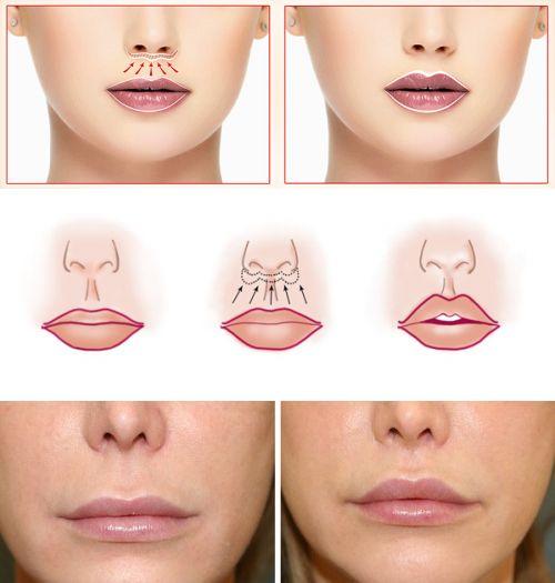 Cięcie pod nosem - Bullhorn Lip Lift