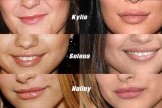 Efekty powiększania ust u celebrytek - Kylie Jenner, Selena Gomez i Hailey Bieber