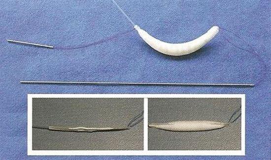 Jak wygląda implant stosowany do powiększania ust