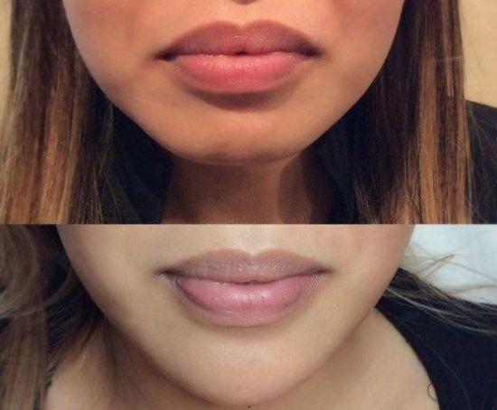 Modelowanie ust metodą podnoszenia kącików - efekty przed i po