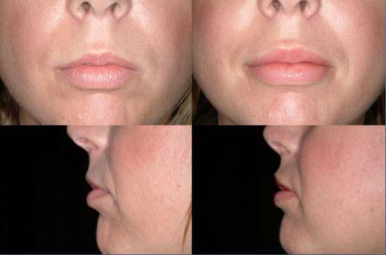 Powiększanie ust implantami silikonowymi - efekt przed i po.