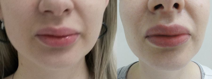 Powiększanie ust własnym tłuszczem - efekty przed i po